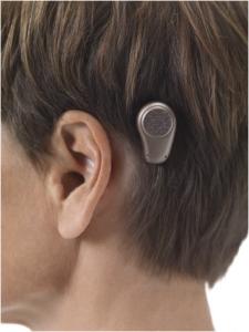 la prothèse auditive par voie osseuse
