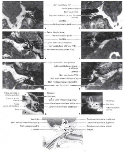 IRM frontales du nerf vestibulo-cochléaire, en vues axiales. Oreille, audition, équilibre, perte auditive.