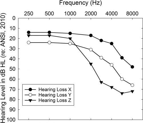 Appareil auditif préréglé sur une courbe presbyacousique typique