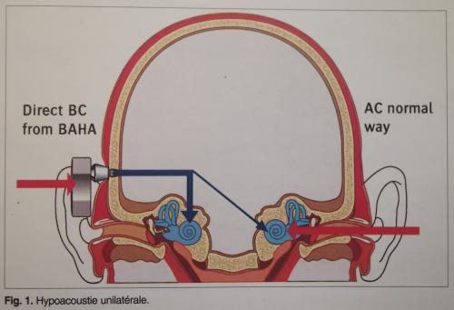 la prothèse auditive par voie osseuse, hypoacousie unilatérale