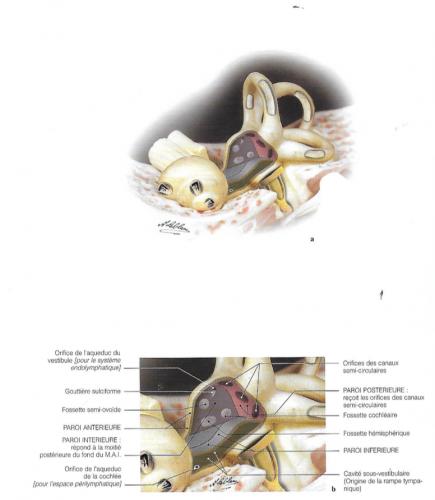 Fenestration du vestibule pour la mise en évidence des parois perforées osseuses permettant l'engagement des canaux semi circulaires, des orifices des aqueducs de la cochlée et du vestibule, puis le même vestibule fenêtré montrant la situation de l'utricule, saccule et le canal endolymphatique.