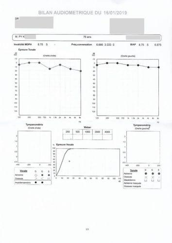 audiogramme d'un médecin ORL sur un patient entendant parfaitement, en comparaison à l'audiogramme du même patient réalisé par un audioprothésiste et montrant une perte sévère de l'audition chez ce patient.