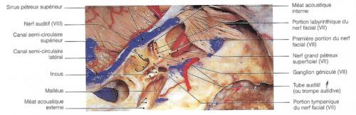 Coupe anatomique axiale au niveau du labyrinthe, avec la mise en évidence des méats acoustiques interne et externe et des nerfs auditifs et facial.