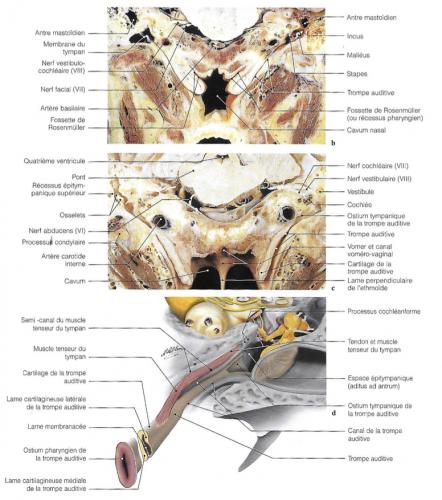 Tomodensitométrie (TDM) (a) et coupes anatomiques (b,c) des trompes auditives et des défilés antro-adito-atticaux ; diagrammes (d) de la trompe auditive de son ostium tympanique à son ostium pharyngien.