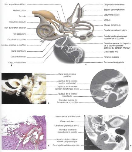 Diagramme pour les espaces périlymphatiques; vue anatomique postérieure de la région vestibule-cochléaire : imagerie de l'aqueduc de la cochlée : TDM de l'aqueduc de la cochlée et de l'ouverture externe de son canalicule.