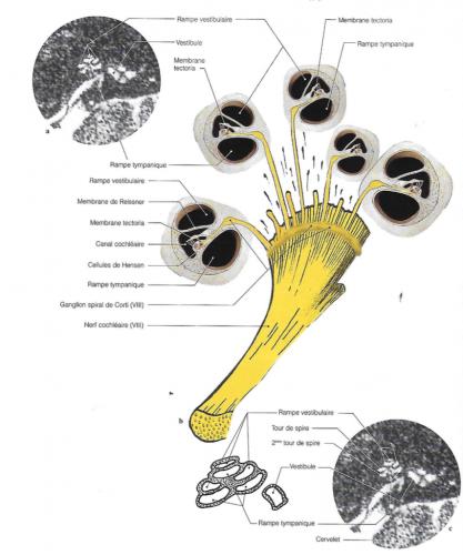 diagrammes du ganglion et de l'organe spiral de Corti superposés à des préparations anatomiques en corrélation avec des vues d'IRM