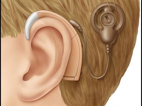 Quand la perte auditive est sévère, l'appareillage auditif est un implant cochléaire ou un contour d'oreille