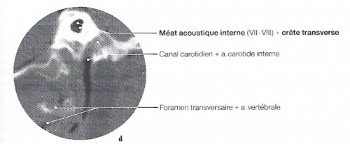 Méat acoustique interne, oreille interne