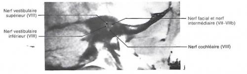 Vues d'IRM et préparation de la cochlée montrant le détail de l'organe de Corti (a,c) ; diagrammes, tomographies, IRM et coupe anatomique pour les nerfs vestibulaire et cochléaireainsi que les cavités de l'oreille interne (d, j).