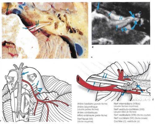 Coupe axiale du tronc cérébral au niveau de nerf vestibulo-cochléaire et de l'artère labyrinthique dans le méat acoustique interne (a) ; dissection du tronc cérébral pour l'artère cérébelleuse antéro-inférieure (b) ; coupe anatomique axiale (c) vues d'IRM (d, g, h i) et diagrammes (e, f) montrant les rapports vasculaires des nerfs vestibulaire, cochléaire, facial et de l'intermédiaire.