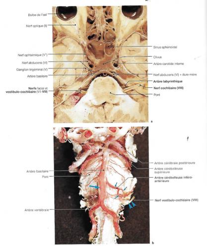 Coupe axiale du tronc cérébral au niveau du nerf vestibule-cochléaire et de l'artère labyrinthique dans le méat acoustique interne
