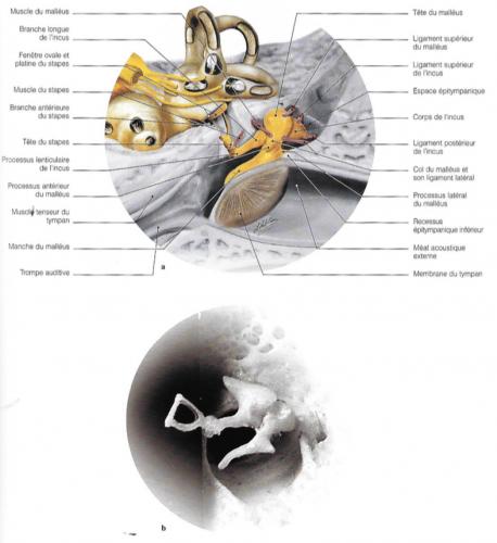 Diagramme des osselets et de leurs ligaments; vue anatomique de la chaîne ossiculaire