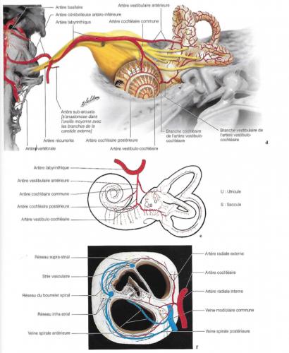 Vues d'IRM de l'angle ponta-cérébelleux au niveau des nerfs acoustique facial avec la superposition du diagramme de l'artère cérébelleuse antéro-inférieure, en corrélation avec une coupe anatomique au même niveau ; diagramme de la vascularisation artérielle et veineuse de l'oreille interne