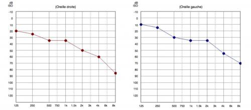 audiogramme de la presbyacousie trouble auditif lié à l'âge