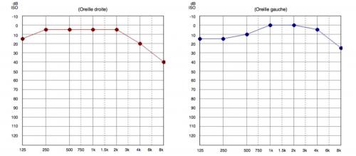audiogramme d'une presbyacousie, perte auditive liée à l'âge, presbyacousie def, causes et conséquences de la presbyacousie