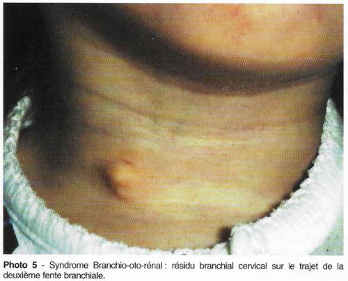 surdité de l'enfant, syndrome branchio oto rénal, scanner des rochers