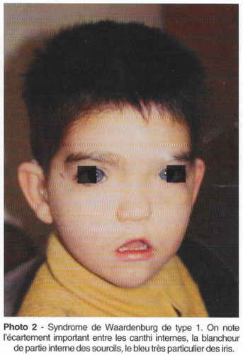 surdité de transmission chez l'enfant, syndrome de waardenburg