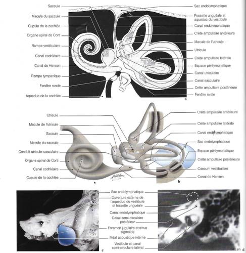 Diagrammes anatomiques pour le système endolymphatique; tomodensitométrie axiale de l'aqueduc du vestibule et du canal endolymphatique; photographie de la région postérieure du rocher montrant l'ouverture externe de l'aqueduc du vestibule avec le diagramme du sac endolymphatique.