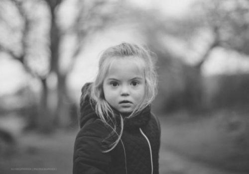 otite seromuqueuse et trisomie 21 chez l'enfant
